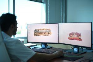 design dental smile simulazione