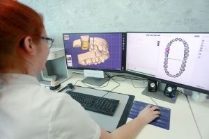 Diagnostica digitale per impiatologia operazione