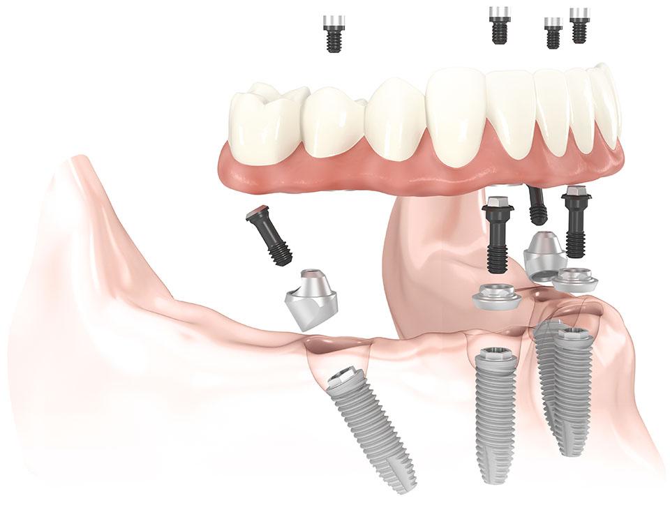 ALL-on-4 Nobel biocare implantologia